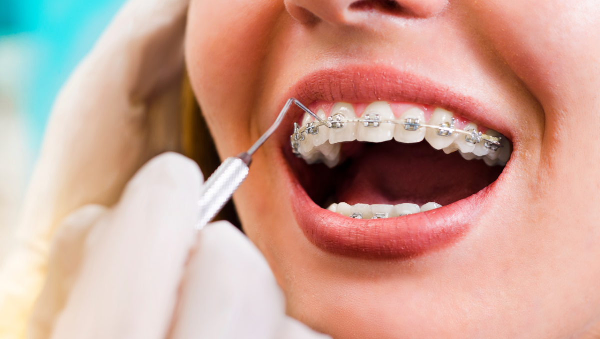 Is Orthodontics Ever Done in an Emergency?